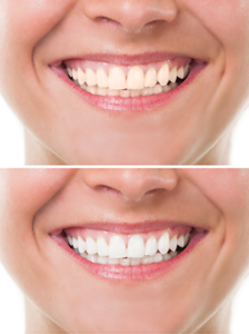 Teeth Whitening Brentwood