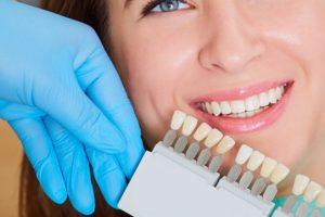 dental porcelain veneers